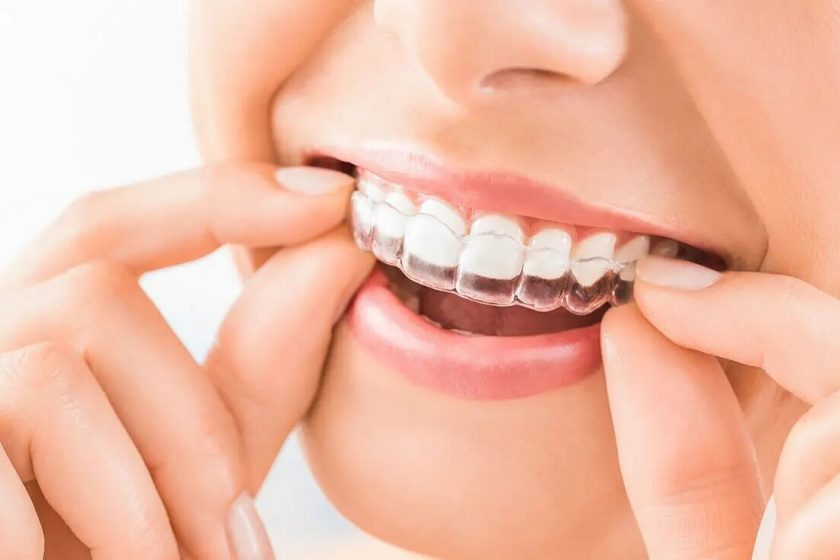 What are Invisible Braces are Right for You?